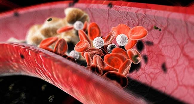 Срок анализа крови на холестерин глюкозу